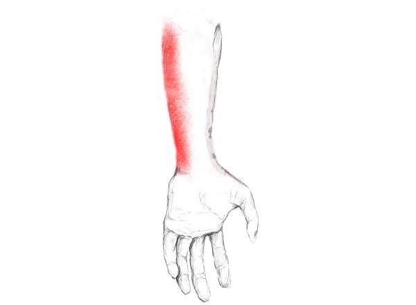 schmerzen im unterarm unterseite