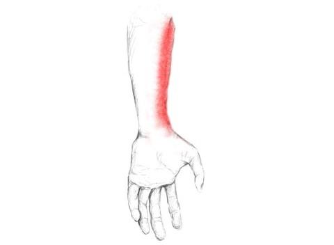 Unterarmschmerzen – außen und innen – loswerden