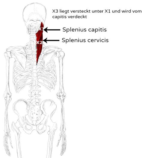 M. Splenius capitis & cervicis Schmerzen und Triggerpunkte
