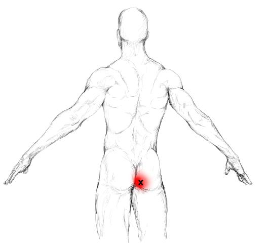 Gluteus maximus Schmerzen & Triggerpunkte selber behandeln