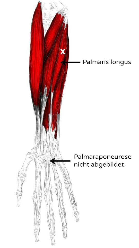 M. Palmaris longus Schmerzen & Triggerpunkte