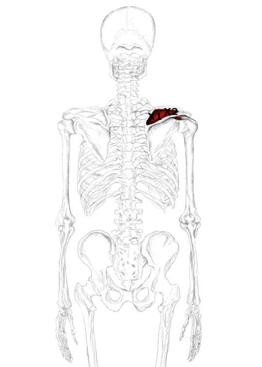 M. Supraspinatus – Schmerzen, Triggerpunkte, u.v.m.