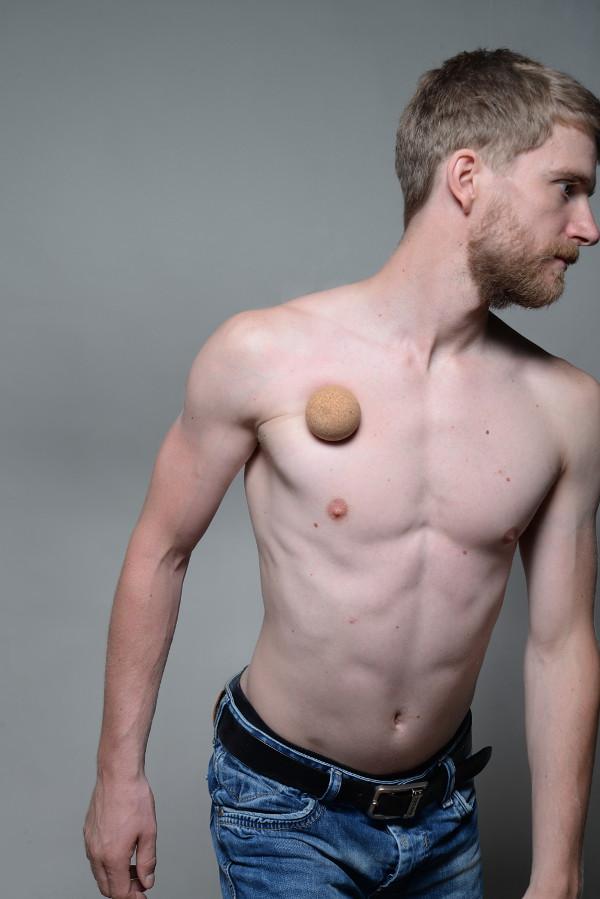 Brustschmerzen in der rechten Brust