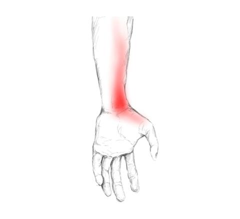 Pronator teres Schmerzen & Triggerpunkte selber behandeln