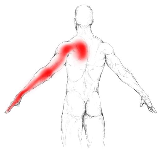 Serratus Posterior Superior Schmerzen Burning Pain Spine Shoulder Blade
