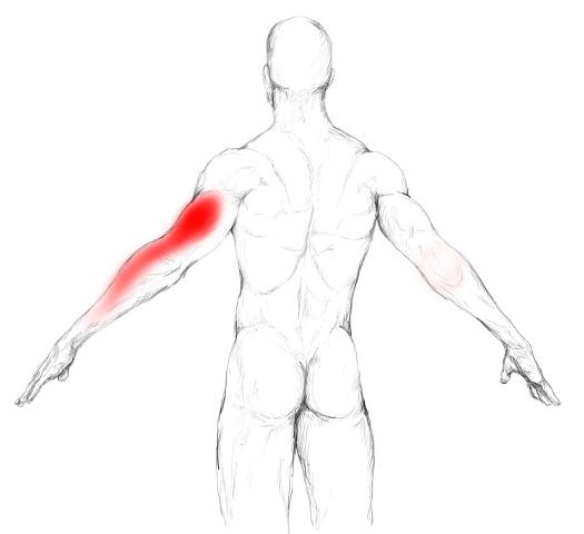 Trizeps Schmerzen & Triggerpunkte selber behandeln