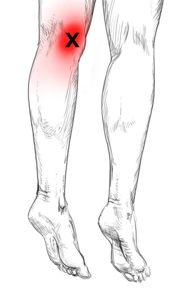 Gastrocnemius Schmerzen & Triggerpunkte selbst behandeln