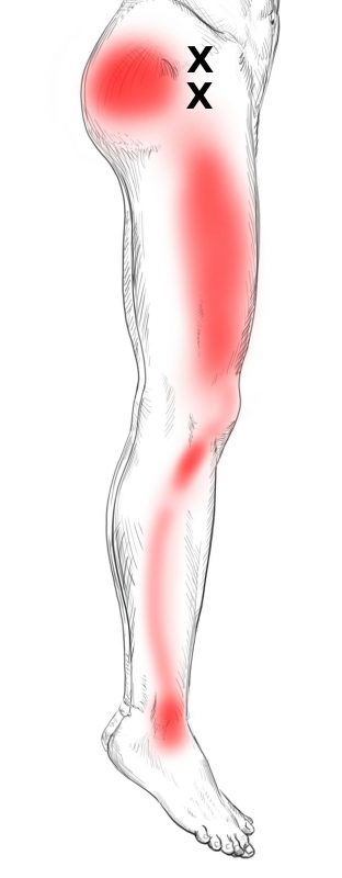 Gluteus minimus Schmerzen & Triggerpunkte selbst behandeln