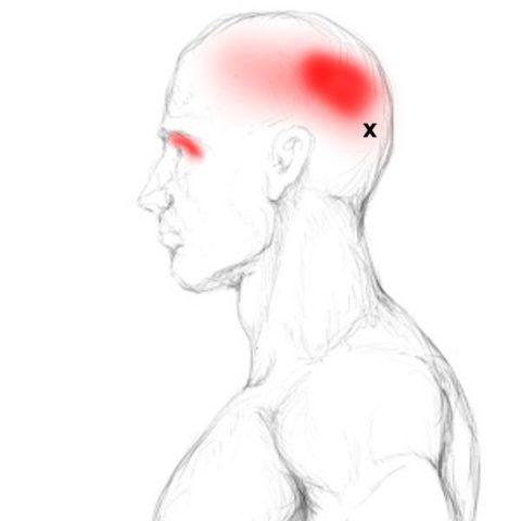 Frontalis und Occipitalis Schmerzen & Triggerpunkte