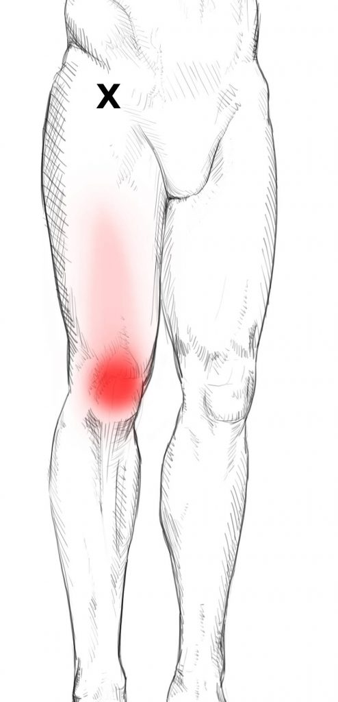 Quadriceps femoris Schmerzen & Triggerpunkte selbst behandeln