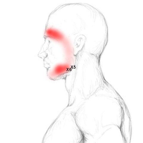 CMD Symptome: Wenn Zähne krank machen