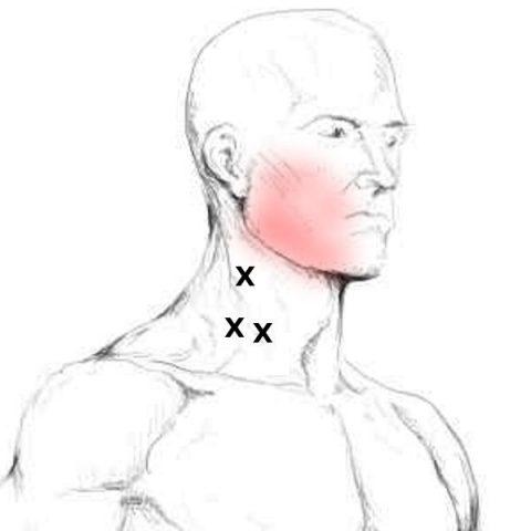 Platysma Schmerzen & Triggerpunkte selbst behandeln